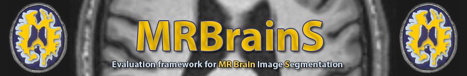 MRBrainS13